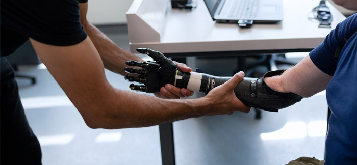 BHTA - bringing industry together - man helping with prosthetic arm